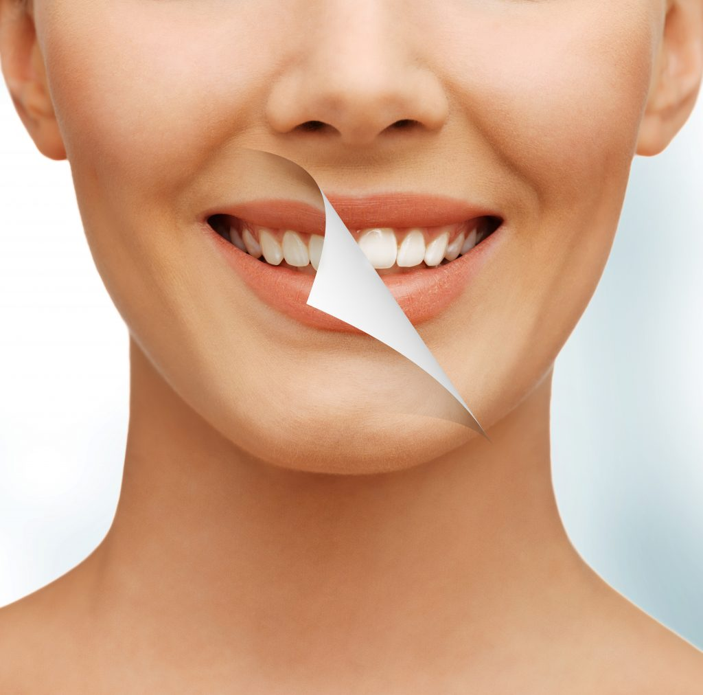 Clear Aligner Process